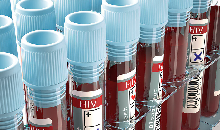 HIV-vials